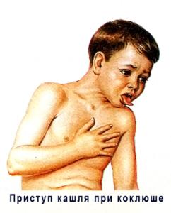 коклюш у ребенка кашель