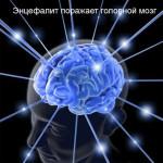 Энцефалит — воспаление головного мозга