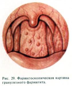 гранулезный фарингит у детей