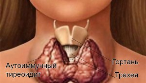 pervie-simptomi-tireoidita-u-detej