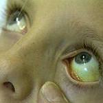 Наследственное заболевание — синдром Жильбера