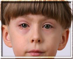 хламидиоз у детей пути заражения