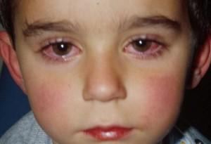 хламидиоз у детей лечение